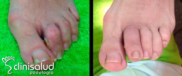 Cirugía dedo en garra Albacete