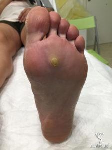 Papiloma en el pie