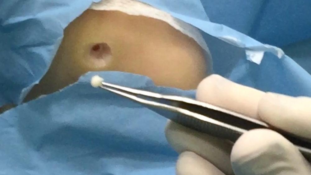 Cirugía de papiloma en Albacete