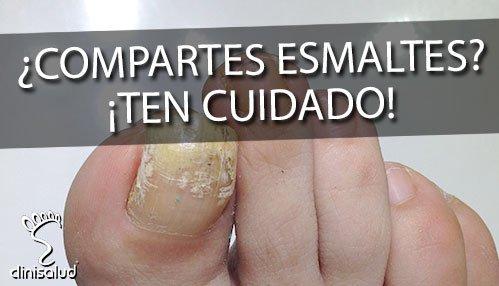 Hongos en esmaltes de uñas